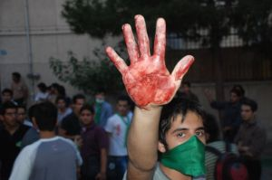 Bloody Hand of Iranian Youth